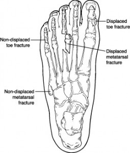 Toe Fracture Picture from footphysicians.com